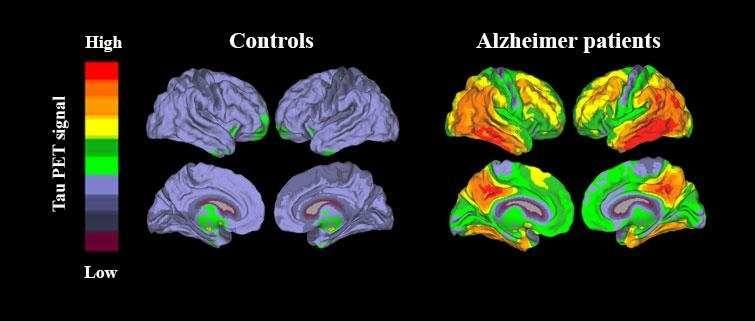 New method enables accurate diagnosis of Alzheimer\'s disease